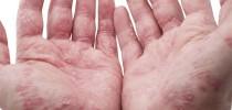 Hautkrankheit mit hohem Leidensdruck – Die Schuppenflechte