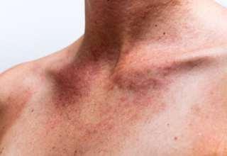 Allergisch gegen Duft – Wie geht das?