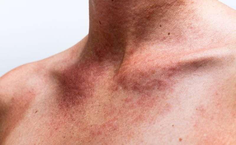 kann und auf mensch allergisch reagieren